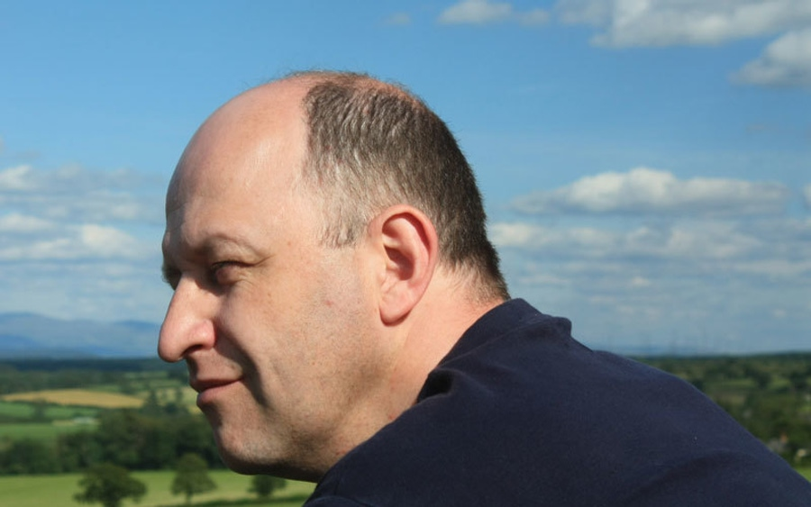Diet and Baldness image