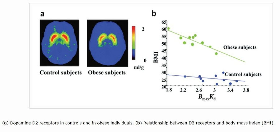 "Wang, Gene-Jack et al. ""Imaging of Brain Dopamine Pathways: Implications for Understanding Obesity."" Journal of addiction medicine 3.1 (2009): 8–18. PMC. Web. 6 Mar. 2015."