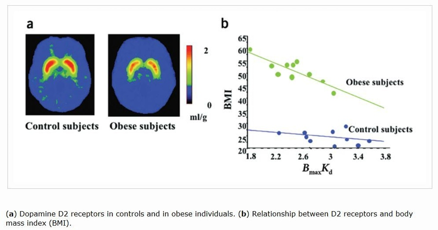 "Volkow et al. ""Overlapping Neuronal Circuits in Addiction and Obesity: Evidence of Systems Pathology."" Biological Sciences 363.1507 (2008): 3191."