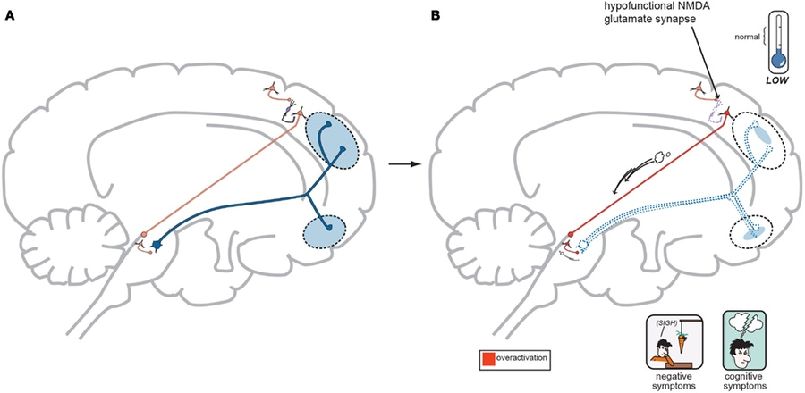 (As Seen In: Schwartz TL, Sachdeva S, Stahl SM. Glutamate neurocircuitry: theoretical underpinnings in schizophrenia. Front Pharmacol. 2012;3:195.)