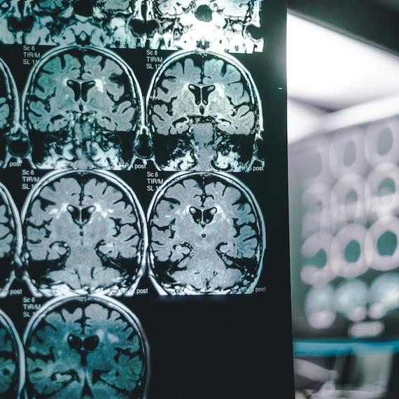 阿尔茨海默氏病,神经退行性疾病,和饮食:以神经科学研究员戴尔·布雷德森博士(第一部分)图像的采访